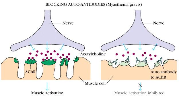 Myasthenia-Gravis.jpg