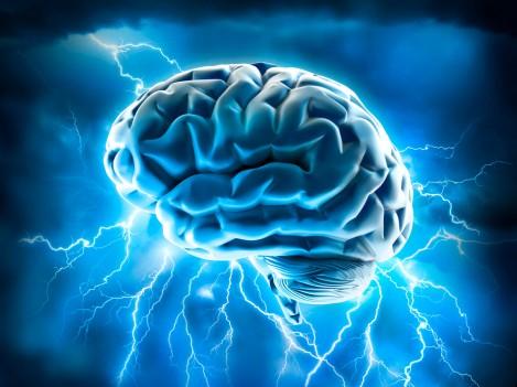 seizure migrains Stock_adventtr.jpg